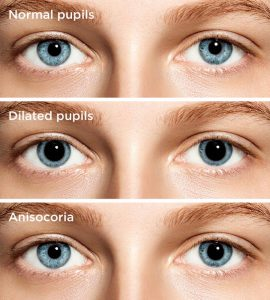 dilated pupils 330×366@2x